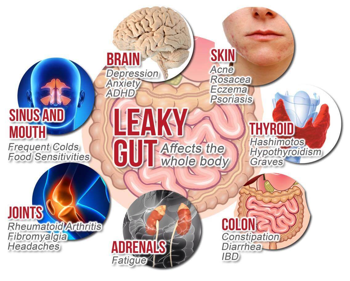 Image result for gut health